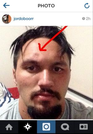 Canberra Raiders fullback Jordan Rapana posted a photo of his fractured skull on Instagram.