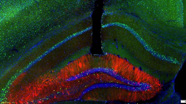 A magnified image of a mouse's brain showing where the fibre-optic cable is inserted in order to turn memory cells, ...