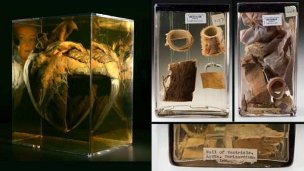 Phar Lap's heart at the National Museum, left, and the rediscovered pieces.