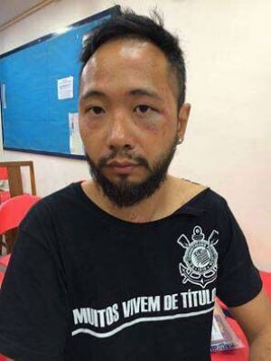 Ken Tsang was later photographed with bruising on his face and body.