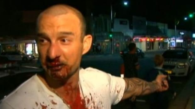 The 35-year-old man believed to have been involved in the assault outside the hotel.