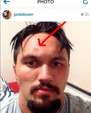 Jordan Rapana's Instagram photo of his head injury, a fractured skull, in August.