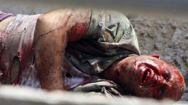 A Lebanese soldier wounded by an Israeli tank at Adaisseh village, southern Lebanon.