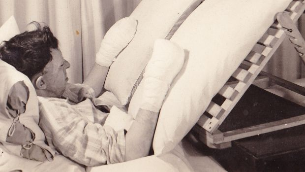 Ken Gilkes in hospital in East Grinstead during World War II.