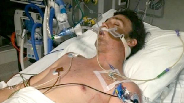 21-year-old Mitch has been left fighting for his life.