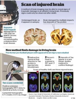 Football players are three times more likely to develop chronic traumatic encephalopathy, which can leave its victims ...
