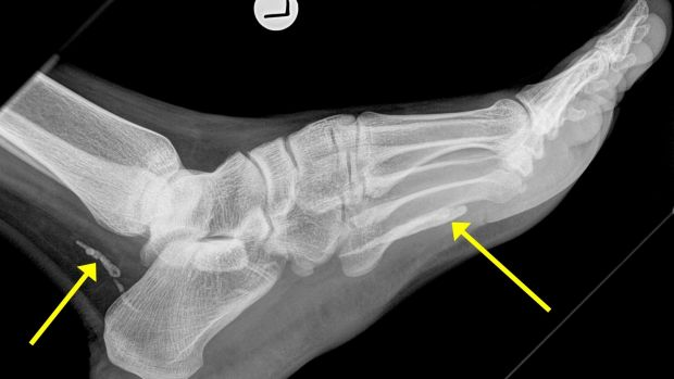 An X-ray of the parasitic worm  in the foot of a Melbourne man.