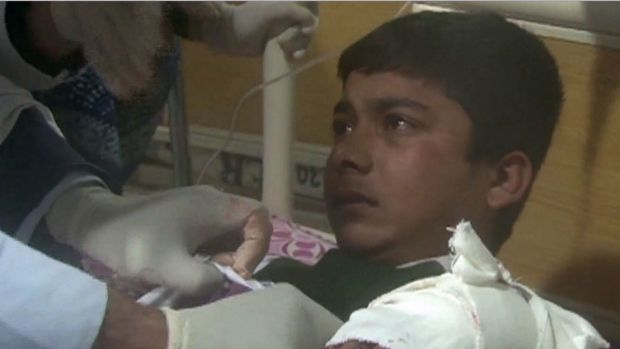 A child receiving treatment at a hospital following an attack by Taliban gunmen.