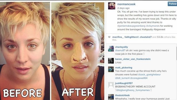 Nose job: Cuoco takes on rumours with good humour.