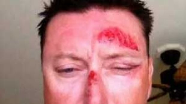 BIG SCARE: A photo showing Robert Allenby's injuries was aired on television.