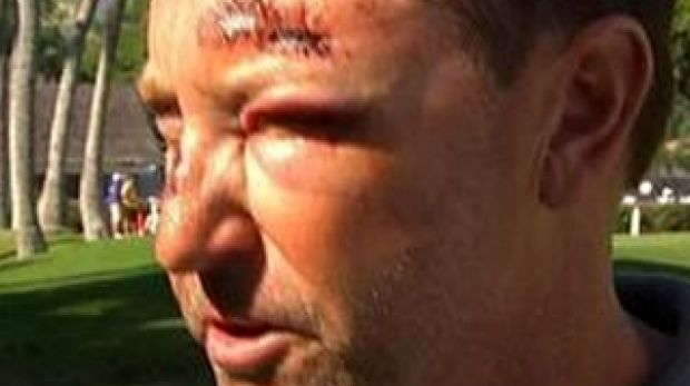 Injured: Golfer Robert Allenby.