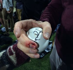 Tom Zouch's finger after catching a 'six' during the BBL half time show.