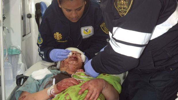 A woman, injured by the explosion at the maternity hospital, lies on a stretcher in Cuajimalpa, Mexico City.