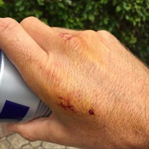 Whincup's hand post-bite.