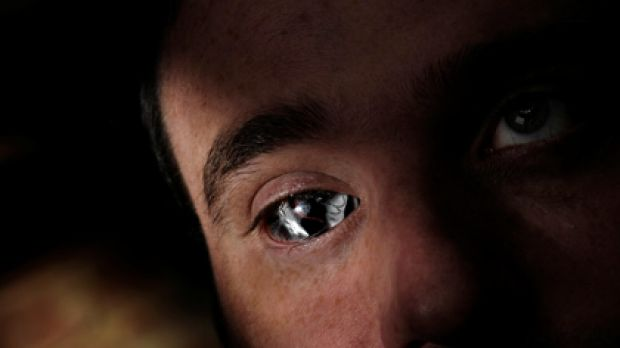 The camera in Rob Spence's eye socket is wireless.