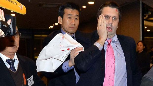Mark Lippert was led away immediately following the attack.