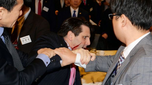 US ambassador to South Korea Mark Lippert with a wound on his face as he leaves the Sejong Cultural Institute in Seoul.