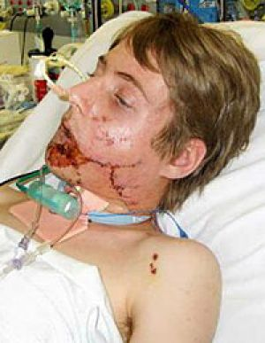 Tori Field suffered serious facial injuries in an explosion at his home in Fernvale.