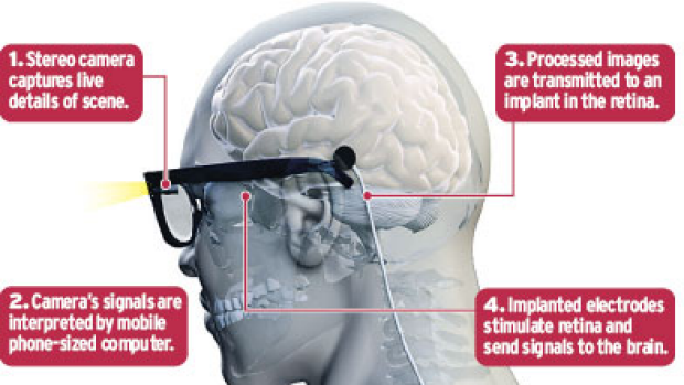 A counter-intuitive approach ... Bionic Vision Australia.