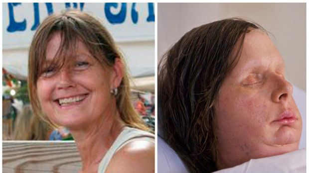 New face ... Charla Nash before the attack (L) and the result of her face transplant (R).
