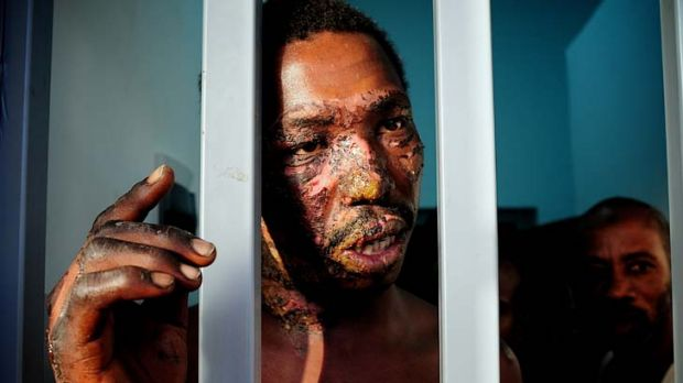 Neglect in custody ... Ahmad Ali stands in his Tripoli prison cell showing the nine-day-old burns to his face that had ...