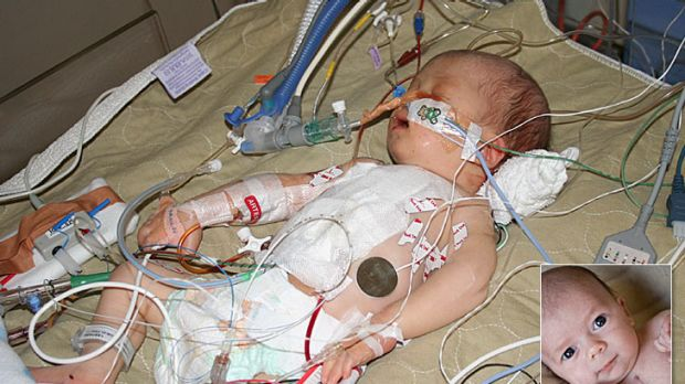 Xavier Horsley was born premature with an undiagnosed heart condition and had to undergo lifesaving surgery. Seven ...