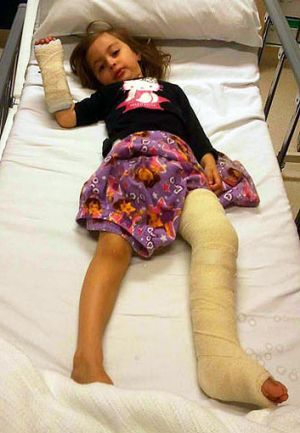 Malia, 3, was eventually treated for a broken leg.