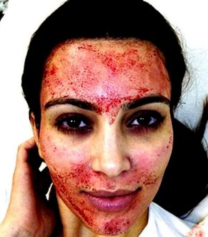 """Kim Kardashian shared this picture of her having a """"vampire"""" facial on Instagram, sparking increased demand for the ..."""