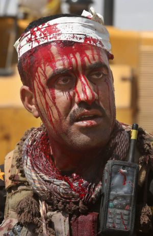 An injured Iraqi officer waits for treatment on the front line during clashes with Islamic State extremists in Tikrit.