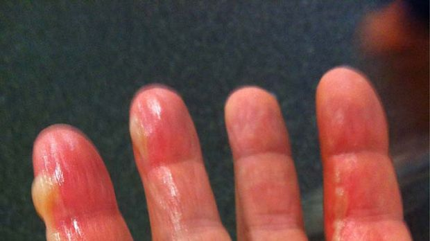 Ham fisted ... Warne's famous hand bowling hand was burnt while frying bacon.