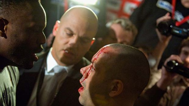Cut open ... David Haye's trainer Adam Booth was left with a cut head.