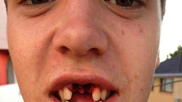 Hard knock: Gold Coast's Seb Tape had his two front teeth knocked out.