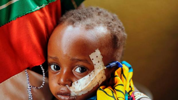 Two-year-old Ouobra Kompalemba, who suffers from severe malnutrition and bronchitis, receives milk through a catheter in ...