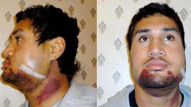 Face facts ... Tangi Ropati had three plates and 15 pins inserted in his jaw after a mistimed tackle.
