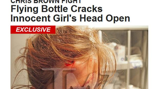 TMZ have published a picture of bloodied Australian tourist Hollie C, who says she was injured in a nightclub brawl ...