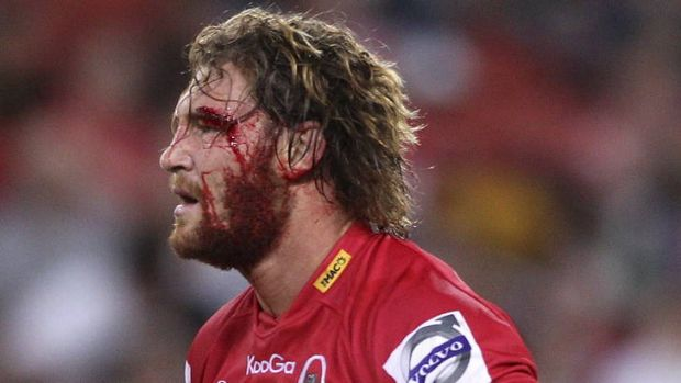 In the wars ... Scott Higginbotham took a sore one for the Reds on Saturday night.