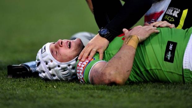 Raiders centre Jarrod Croker after being kneed in the face against the Sharks on Sunday. Croker suffered a fractured ...