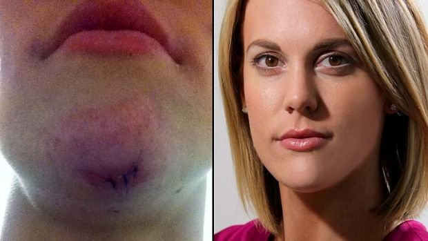 Katherine Feeney (right) shows the stitches in her chin (left).