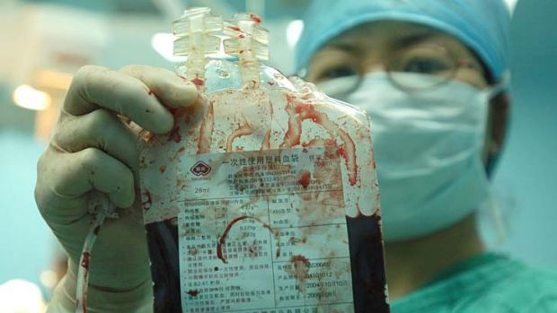 A Beijing Chuiyangliu Hospital doctor displays umbilical cord blood collected from a newborn baby.