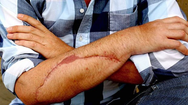 The injuries that the keen surfer sustained in the attack.