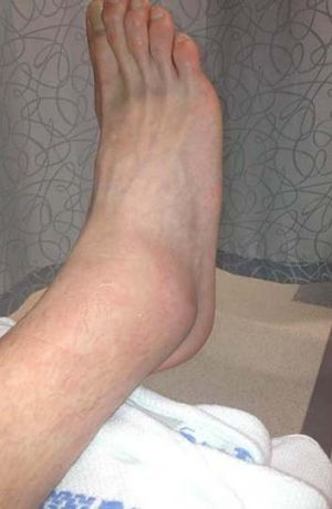 Ugly ... Nash Rawiller tweeted this image of his ankle on Tuesday.