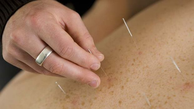 The populatiry of alternative medicine, such as acupuncture, has some scientists worried.