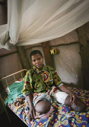 Forgotten people … Congolese woman Kabibi Tabu, who lost her legs to a landmine, at the Medecins Sans Frontieres ...
