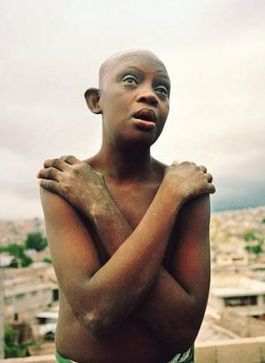 Coping with trauma … a Down syndrome sufferer in Haiti performs the butterfly technique.