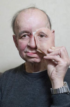Eric Moger has a partial prosthetic face after suffering from face cancer.