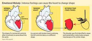 Takotsubo Cardiomyopathy: can change the shape of your heart.