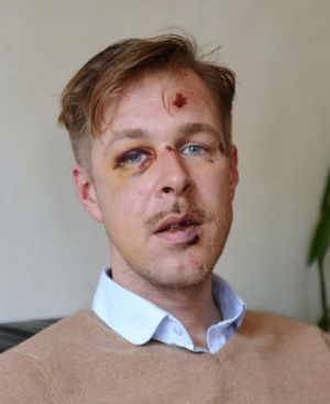 Wilfred de Bruijn: attacked while walking with his partner.