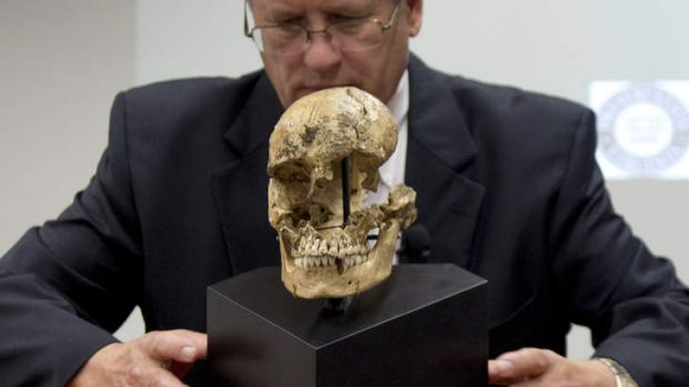 "Doug Owsley of the Smithsonian's National Museum of Natural History displays the skull of  ""Jane of Jamestown"". The ..."