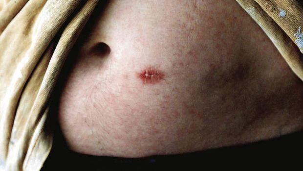 A man with a Naltrexone implant in his stomach.