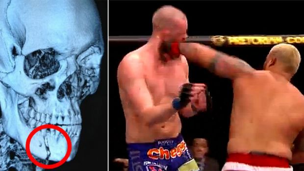 The x-ray of Stefan Struve's broken jaw (left) caused by this massive overhand left unleashed by Mark Hunt in March.
